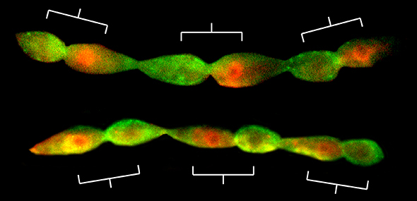 Stem cell polarity and asymmetric cell division is flipped in Axin mutant cells (bottom) compared to wild-type (top).