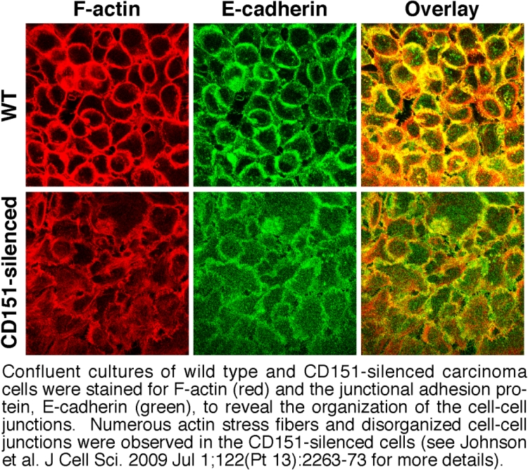Tetraspanin CD151 regulates the stability of carcinoma cell-cell junctions