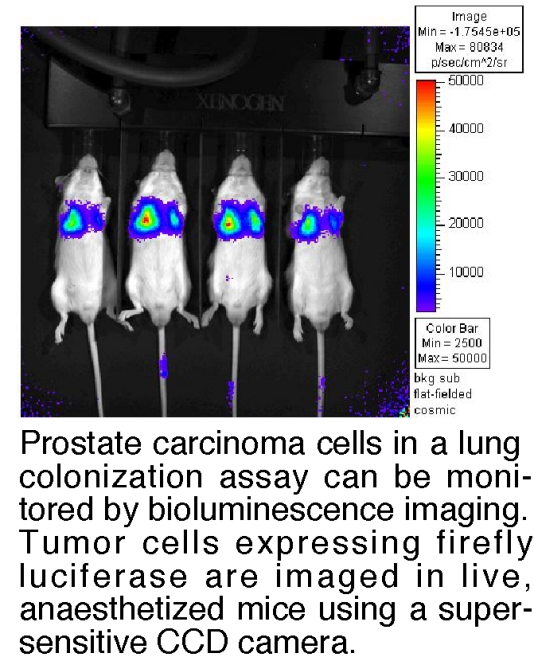 Monitoring tumor growth in vivo by bioluminescence imaging.