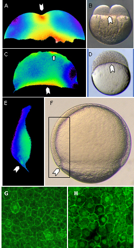 Dynamic stages of calcium release in zebrafish and ectopic nuclear Beta-catenin.