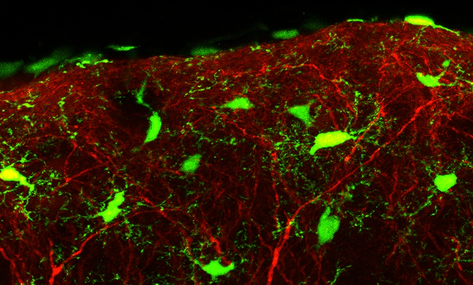 GFP+ Microglia & YFP+ Neurons in P12 mouse neocortex (CX3CR1GFP/+:Thy1-YFP) - Michael Dailey