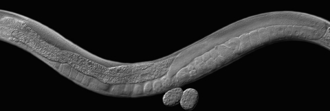 image of a roundworm
